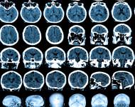 Lire la suite de L'étude INSIGHT : mieux comprendre la maladie d'Alzheimer