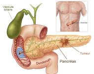 Lire la suite de Cancer du pancréas : rester vigilant