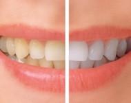Lire la suite de Protéger ses dents en trois grandes résolutions