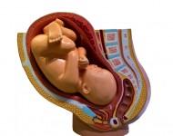 Lire la suite de Les Etats-Unis expérimentent la greffe d'utérus