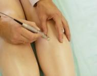 Lire la suite de Varices et complications : tout savoir sur l'ulcère variqueux