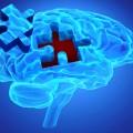 diagnostiquer-la-schizophrenie