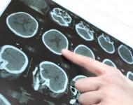 Lire la suite de Sclérose en plaques: maladie héréditaire ou génétique?