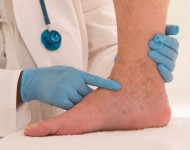 Lire la suite de Traiter les varices sans chirurgie