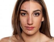 Lire la suite de Acné : le dermatologue, votre premier interlocuteur !