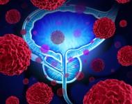 Lire la suite de Création d'un»organoïde» de vessie à partir de cellules souches – Etude