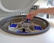 Lire la suite de PMA : vers la possibilité de conserver ses ovocytes ?
