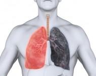 Lire la suite de BPCO et emphysème pulmonaire: quels sont les liens ?